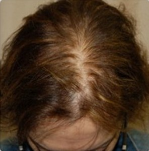 Mesotherapy-Before