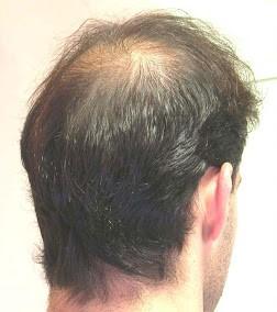 before-hair-man